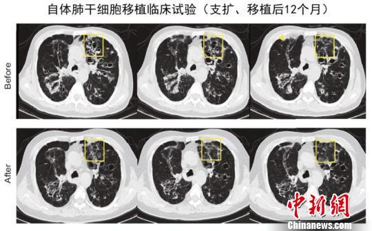 同済大学が世界初のヒト肺幹細胞移植に成功